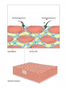Disrupted skin barrier