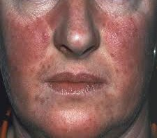 Face with Rosacea
